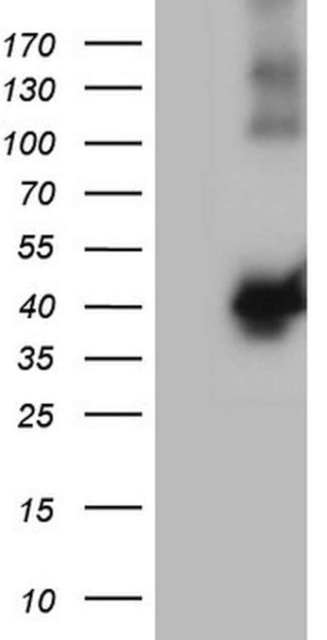 MGC12965 Mouse anti-Human, Clone: OTI9B10, lyophilized, TrueMAB  100 µg;