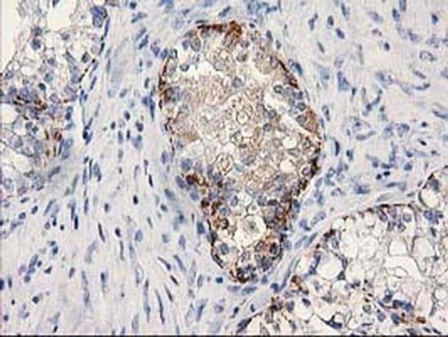 MGLL Mouse anti-Human, Clone: OTI1A1, liquid, TrueMAB  100 µL; Unconjugated