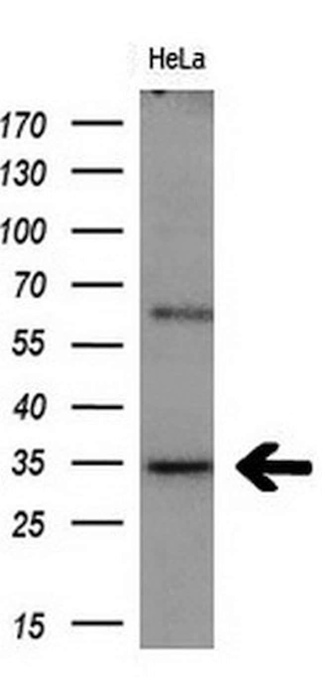 MGLL Mouse anti-Human, Clone: OTI1B1, liquid, TrueMAB  30 µL; Unconjugated