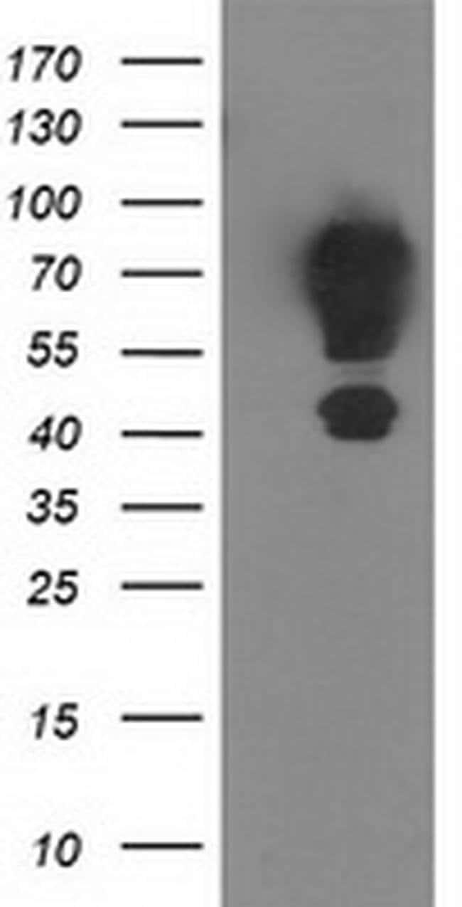 MGRN1 Mouse anti-Human, Clone: OTI1A8, liquid, TrueMAB  100 µL; Unconjugated