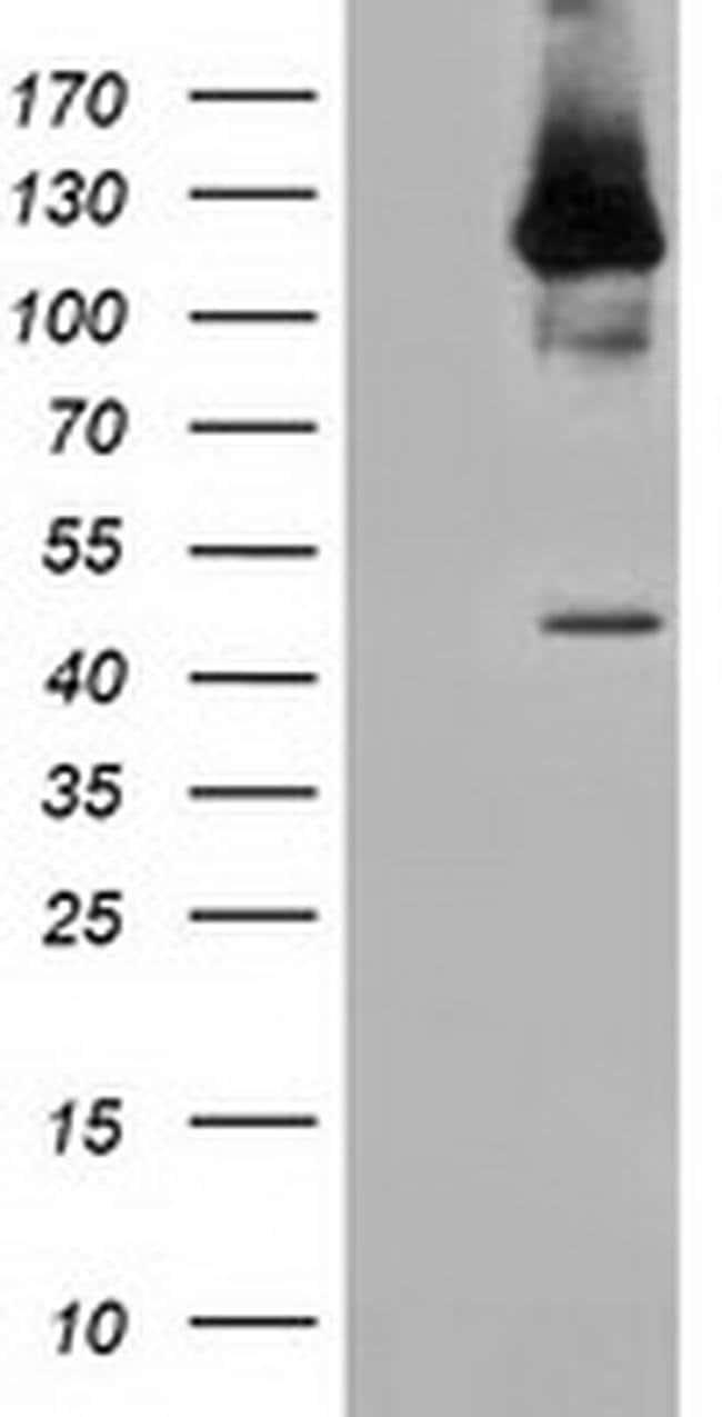 MICAL1 Mouse anti-Human, Clone: OTI4D1, liquid, TrueMAB  100 µL; Unconjugated