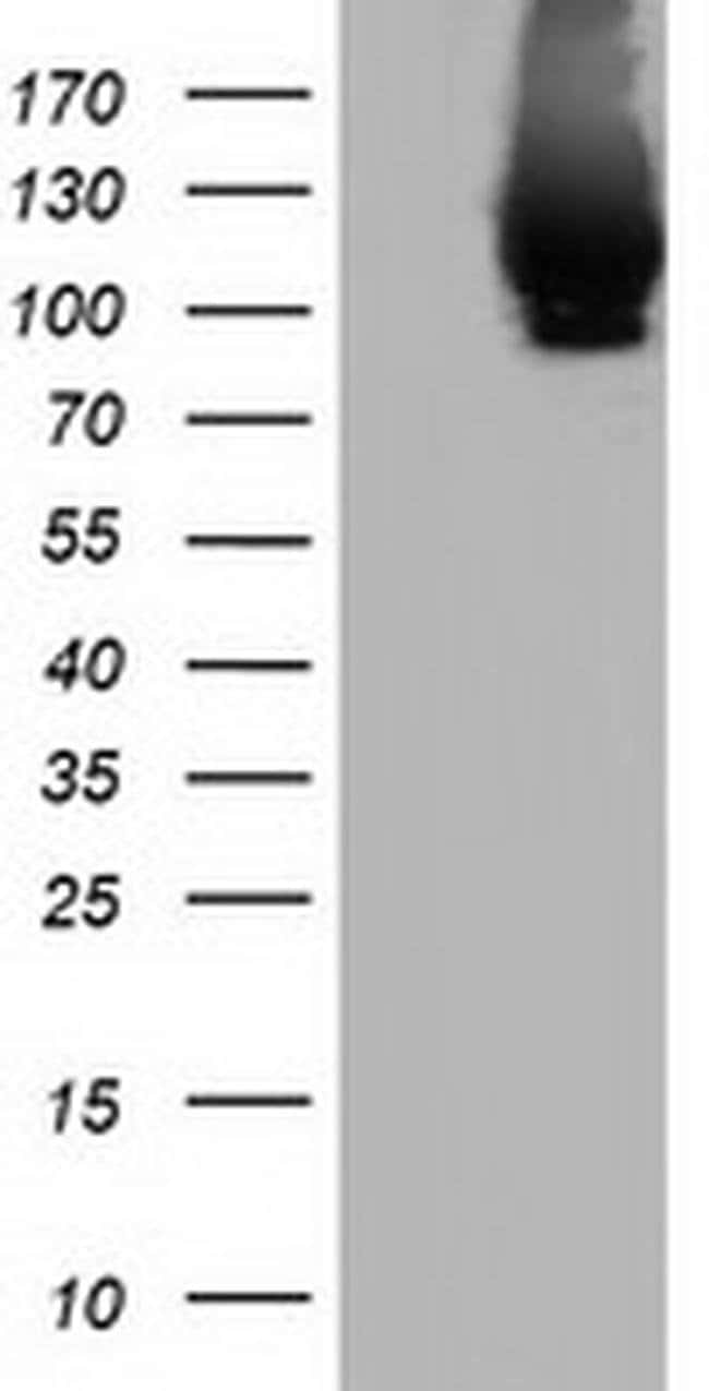 MICAL1 Mouse anti-Human, Clone: OTI6C7, liquid, TrueMAB  100 µL; Unconjugated