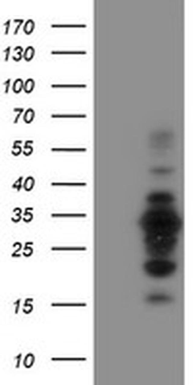 MIF4GD Mouse anti-Human, Clone: OTI4C11, liquid, TrueMAB  100 µL;