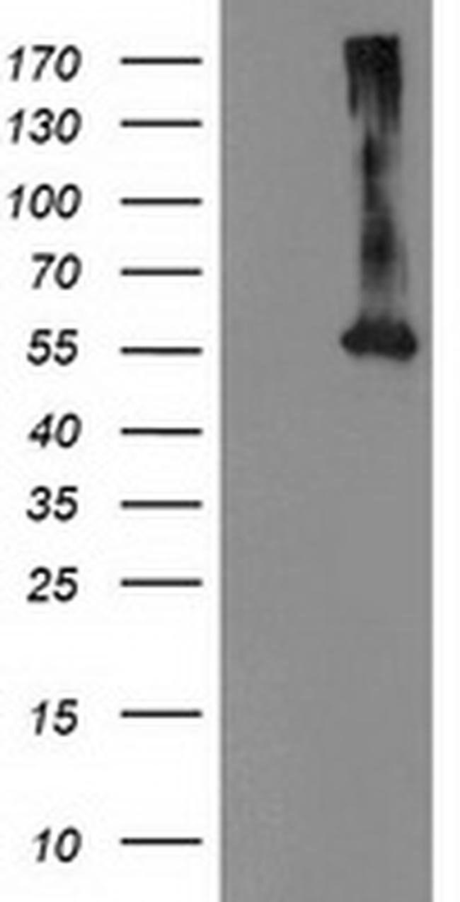 MKRN1 Mouse anti-Human, Clone: OTI1G6, liquid, TrueMAB  100 µL; Unconjugated