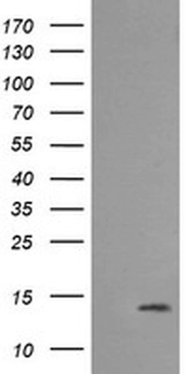 MLANA Mouse anti-Human, Clone: OTI3A2, liquid, TrueMAB  100 µL; Unconjugated