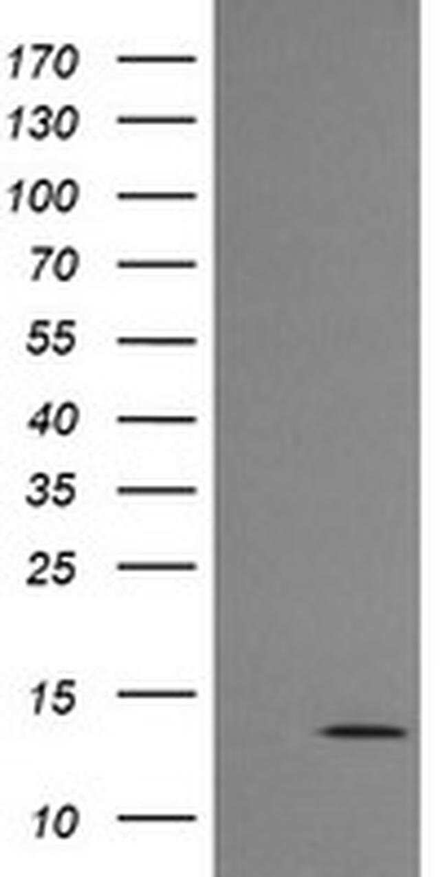 MLANA Mouse anti-Human, Clone: OTI5E6, liquid, TrueMAB  100 µL; Unconjugated