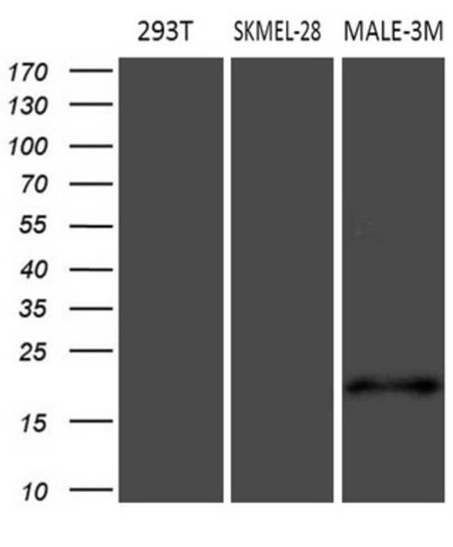 MLANA Mouse anti-Human, Clone: OTI6D9, lyophilized, TrueMAB  100 µg;
