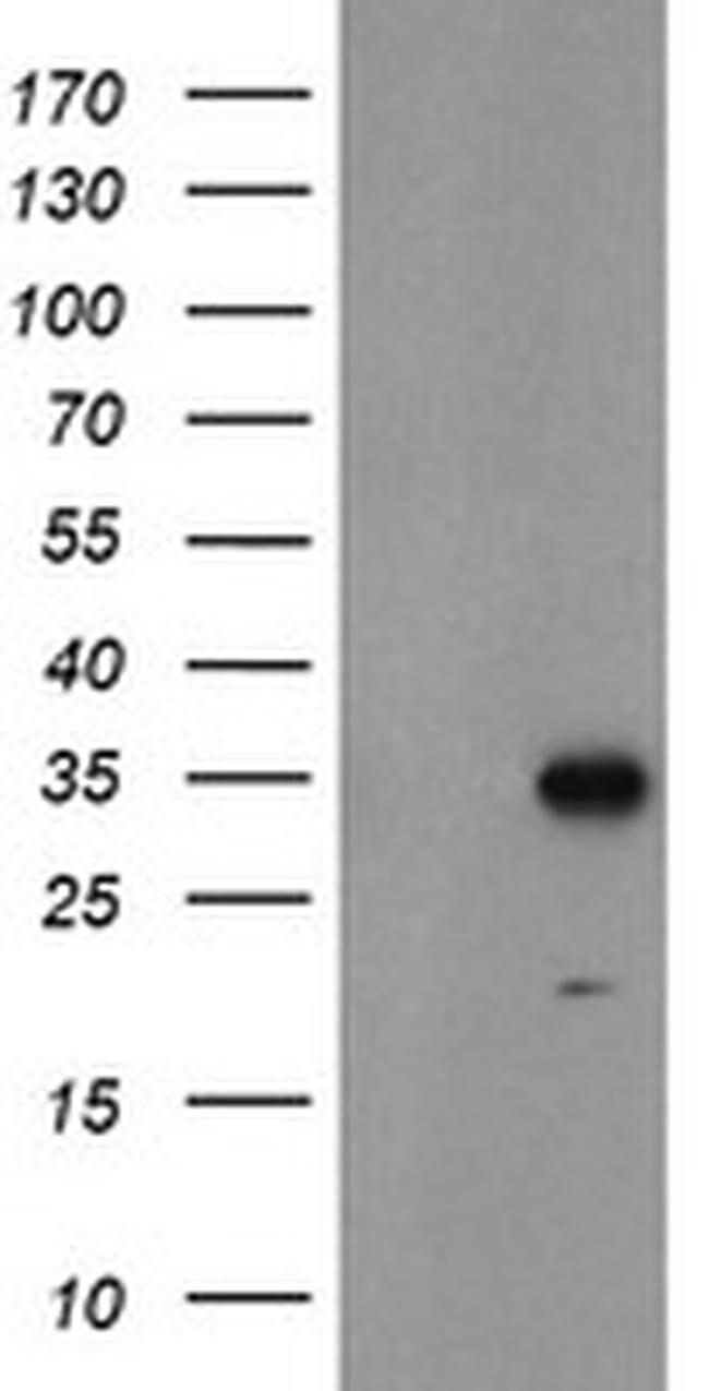 MLF1 Mouse anti-Human, Clone: OTI2H10, liquid, TrueMAB  100 µL; Unconjugated
