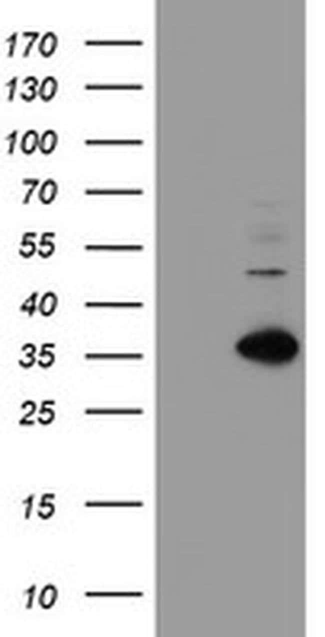 MLF1 Mouse anti-Human, Clone: OTI5E11, liquid, TrueMAB  100 µL; Unconjugated