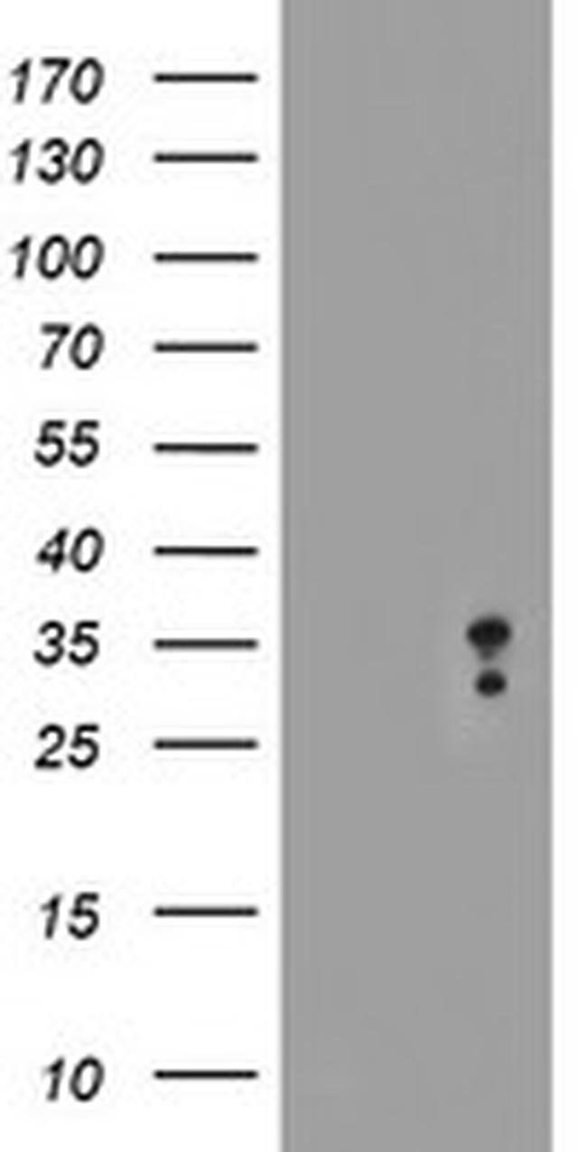 MLF2 Mouse anti-Human, Clone: OTI1H2, liquid, TrueMAB  100 µL; Unconjugated