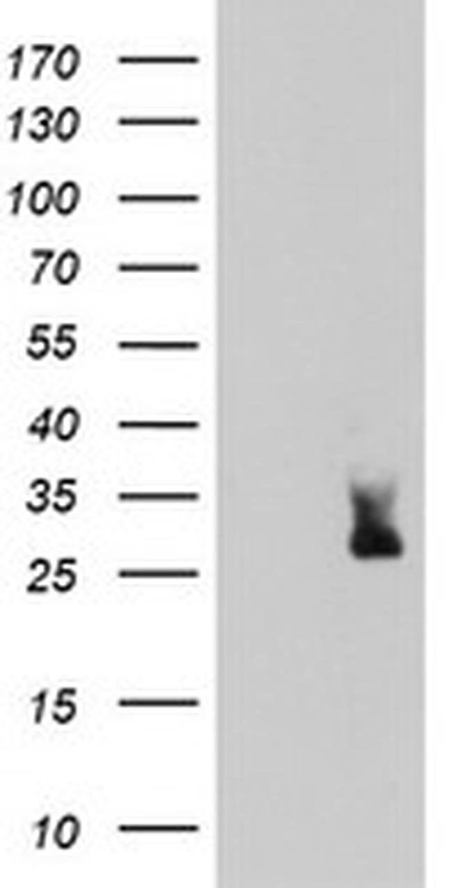 MLF2 Mouse anti-Human, Clone: OTI1E3, liquid, TrueMAB  100 µL; Unconjugated