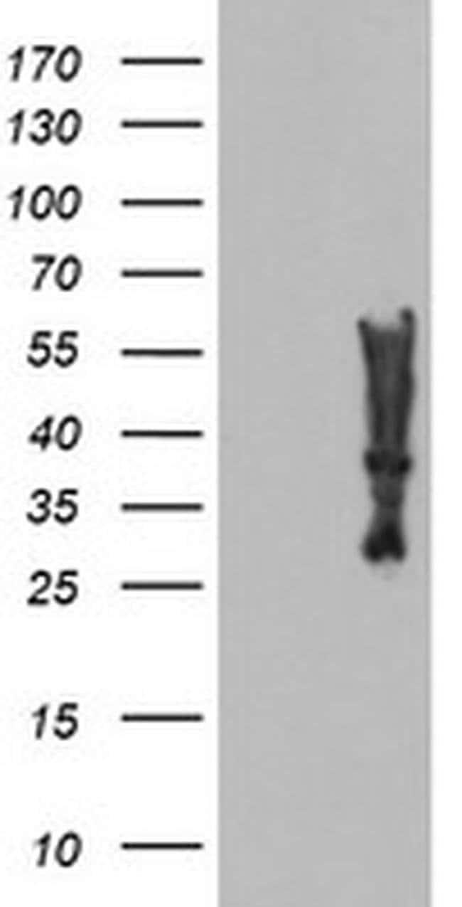 MLF2 Mouse anti-Human, Clone: OTI1E12, liquid, TrueMAB  100 µL; Unconjugated