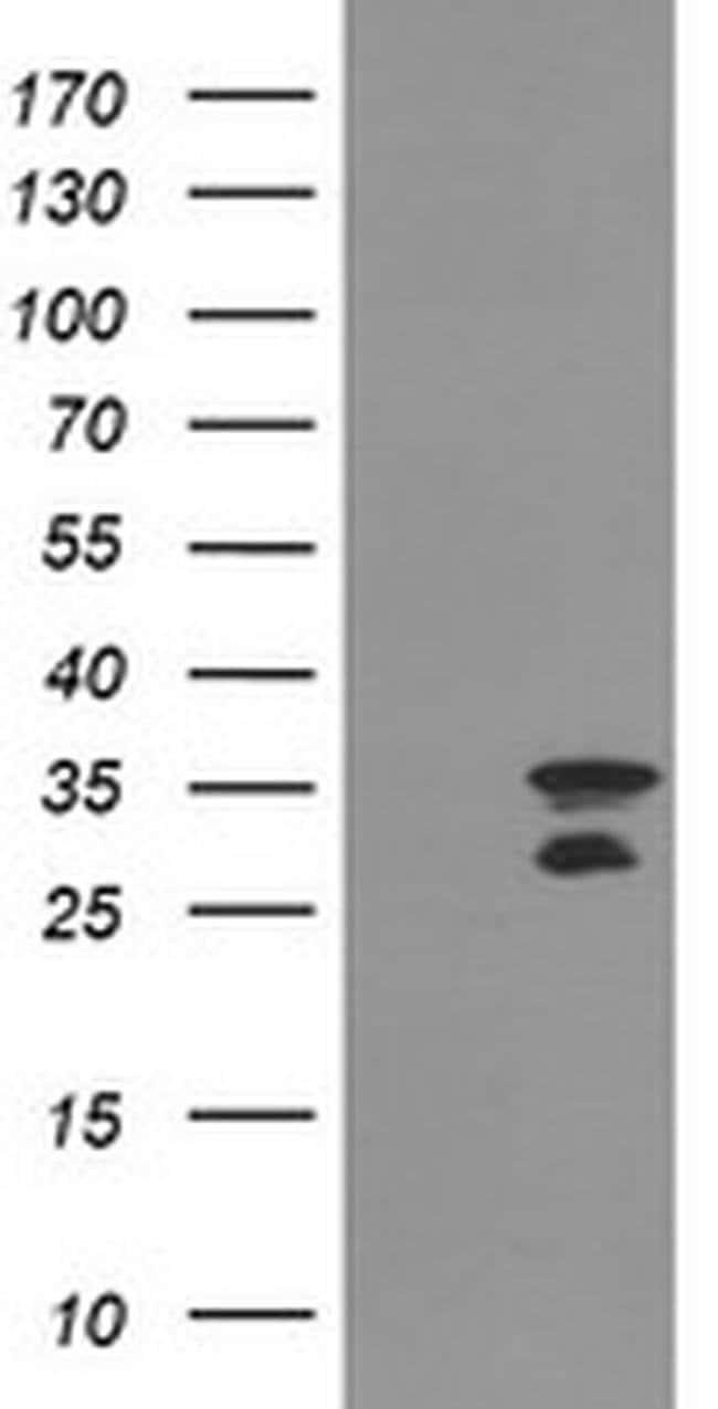 MLF2 Mouse anti-Human, Clone: OTI1G1, liquid, TrueMAB  100 µL; Unconjugated