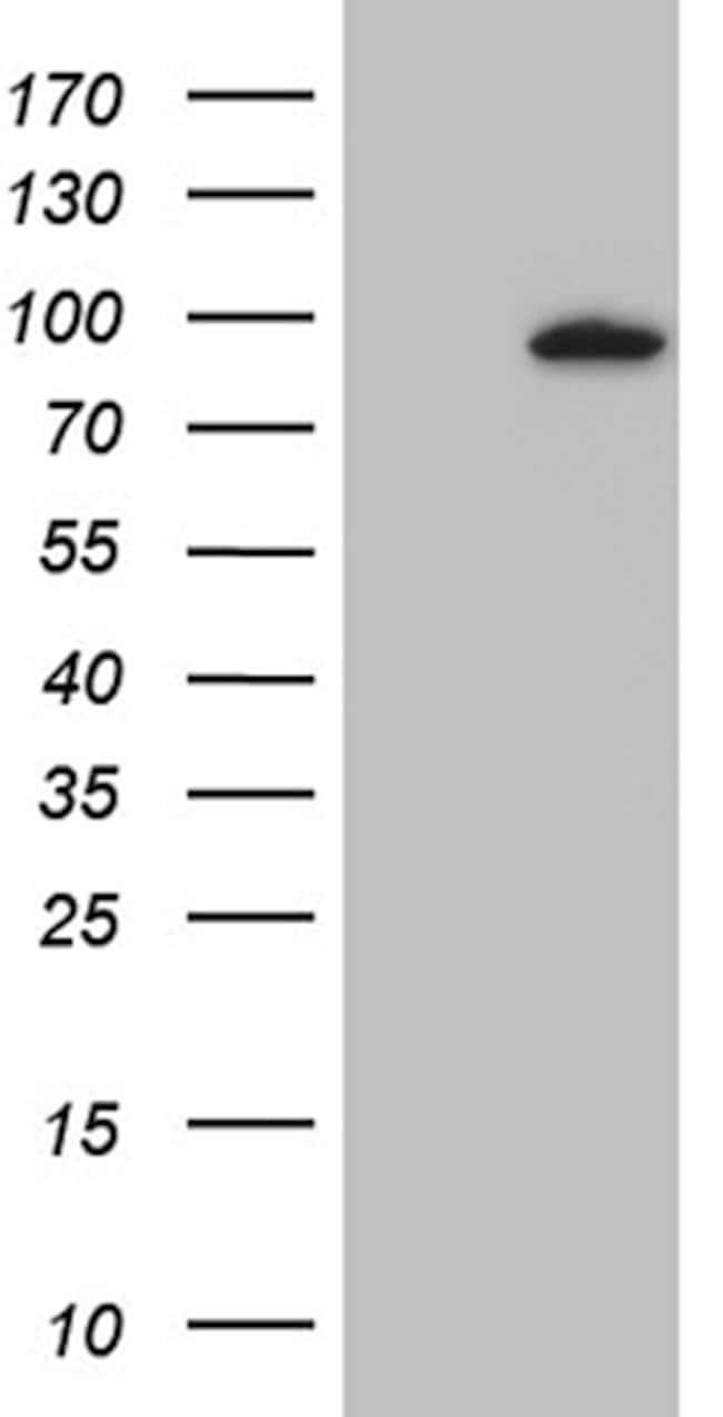 MLH1 Mouse anti-Human, Clone: OTI2D12, lyophilized, TrueMAB  100 µg;