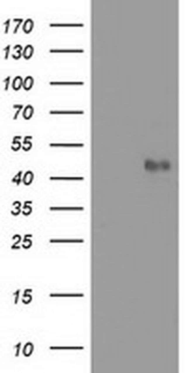 MMAA Mouse anti-Human, Clone: OTI3G5, liquid, TrueMAB  100 µL; Unconjugated