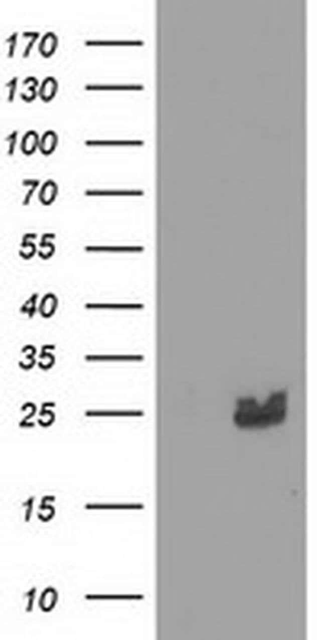 MMAB Mouse anti-Human, Clone: OTI5G1, liquid, TrueMAB  100 µL; Unconjugated