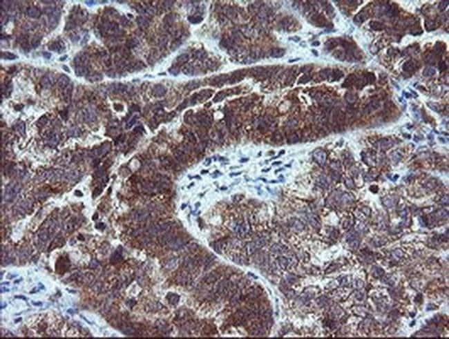 MMACHC Mouse anti-Human, Clone: OTI1A4, liquid, TrueMAB  100 µL; Unconjugated
