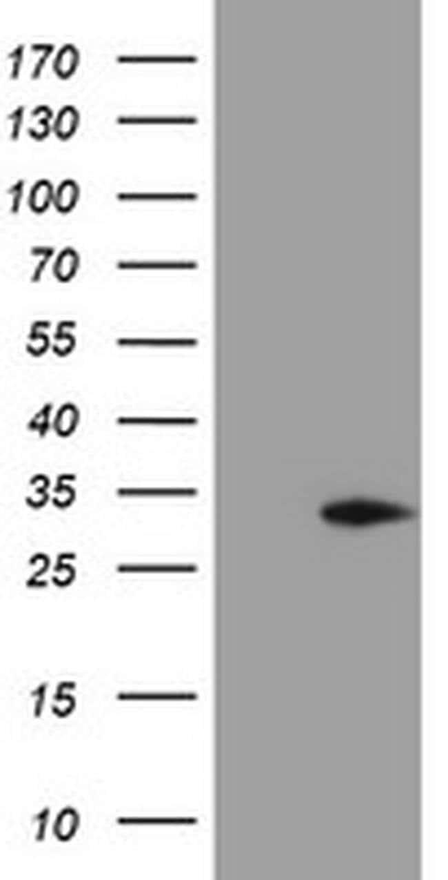 MMACHC Mouse anti-Human, Clone: OTI4E9, liquid, TrueMAB  100 µL; Unconjugated