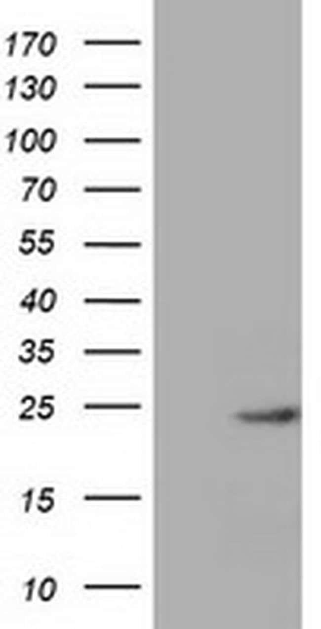 MOBKL1A Mouse anti-Human, Clone: OTI1H8, liquid, TrueMAB  100 µL;
