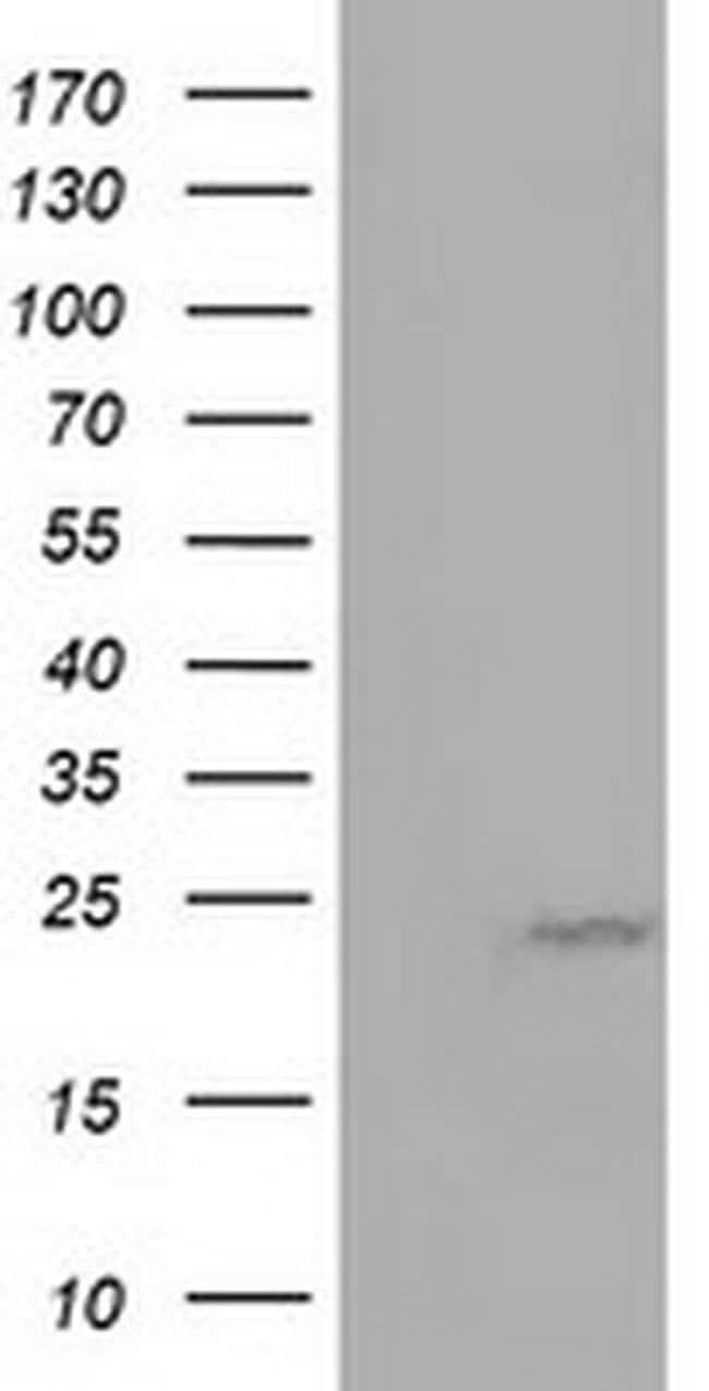 MOBKL1A Mouse anti-Human, Clone: OTI3G9, liquid, TrueMAB  100 µL;
