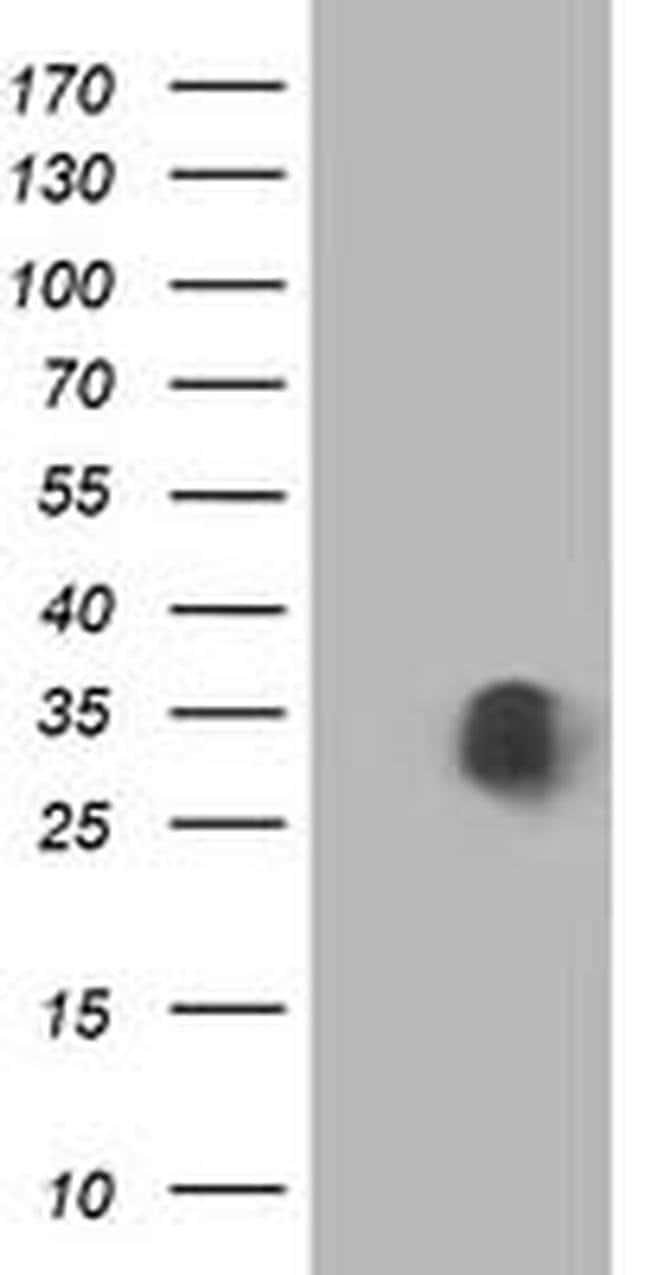 MOBKL1A Mouse anti-Human, Clone: OTI2H4, liquid, TrueMAB  100 µL;