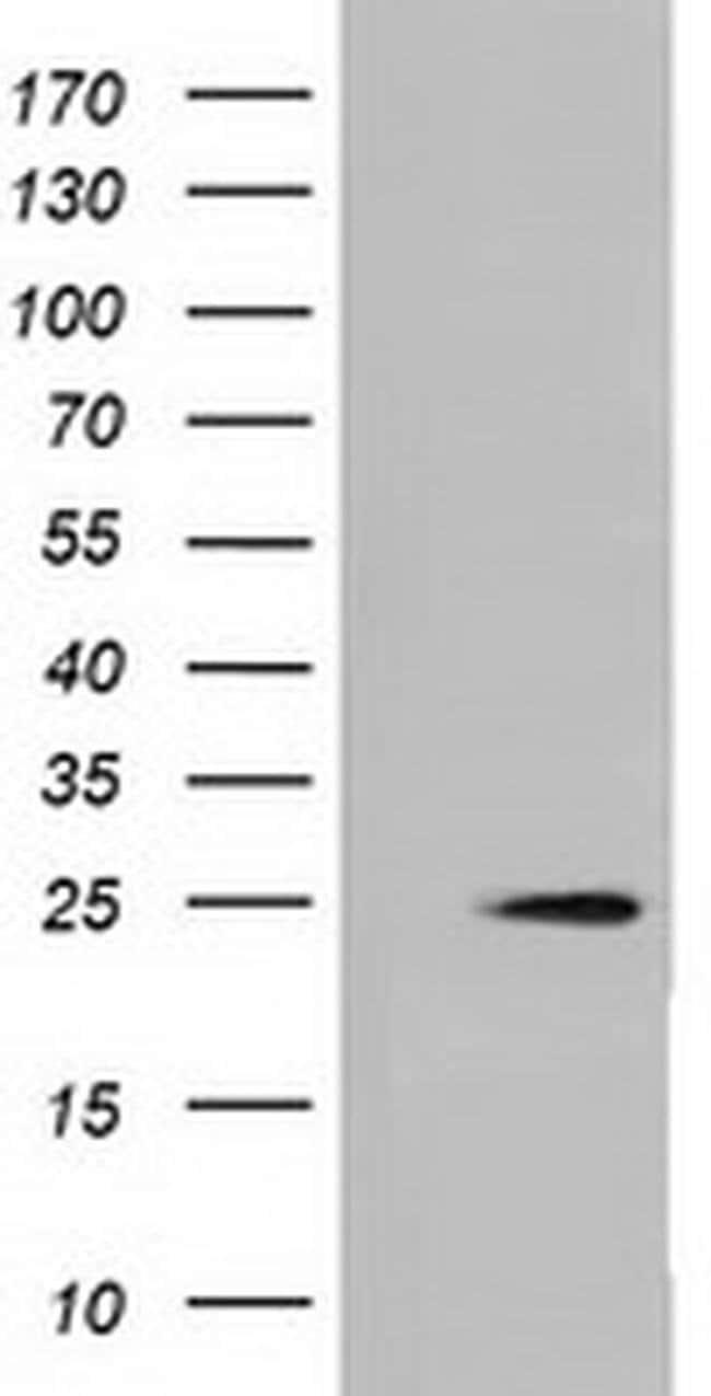 MOBKL2B Mouse anti-Human, Clone: OTI6E3, liquid, TrueMAB  100 µL;