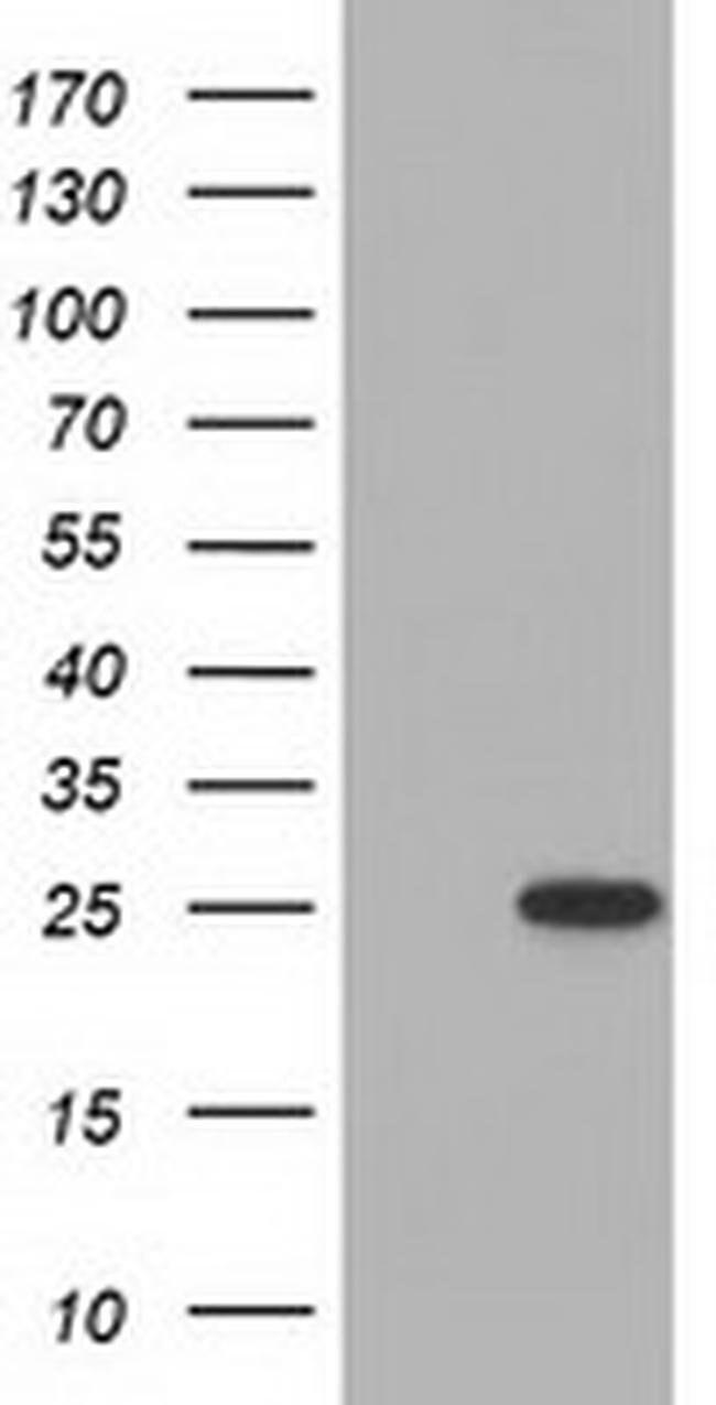 MOBKL2B Mouse anti-Human, Clone: OTI7G2, liquid, TrueMAB  100 µL;