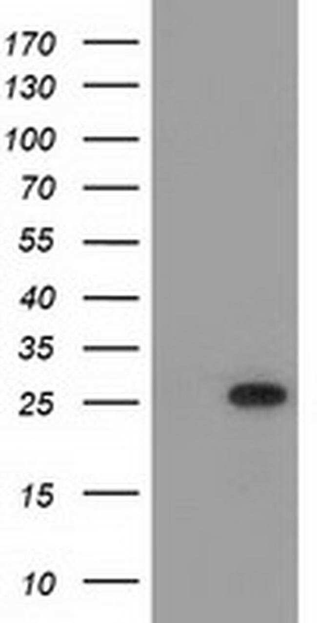 MOBKL2B Mouse anti-Human, Clone: OTI5C7, liquid, TrueMAB  100 µL;