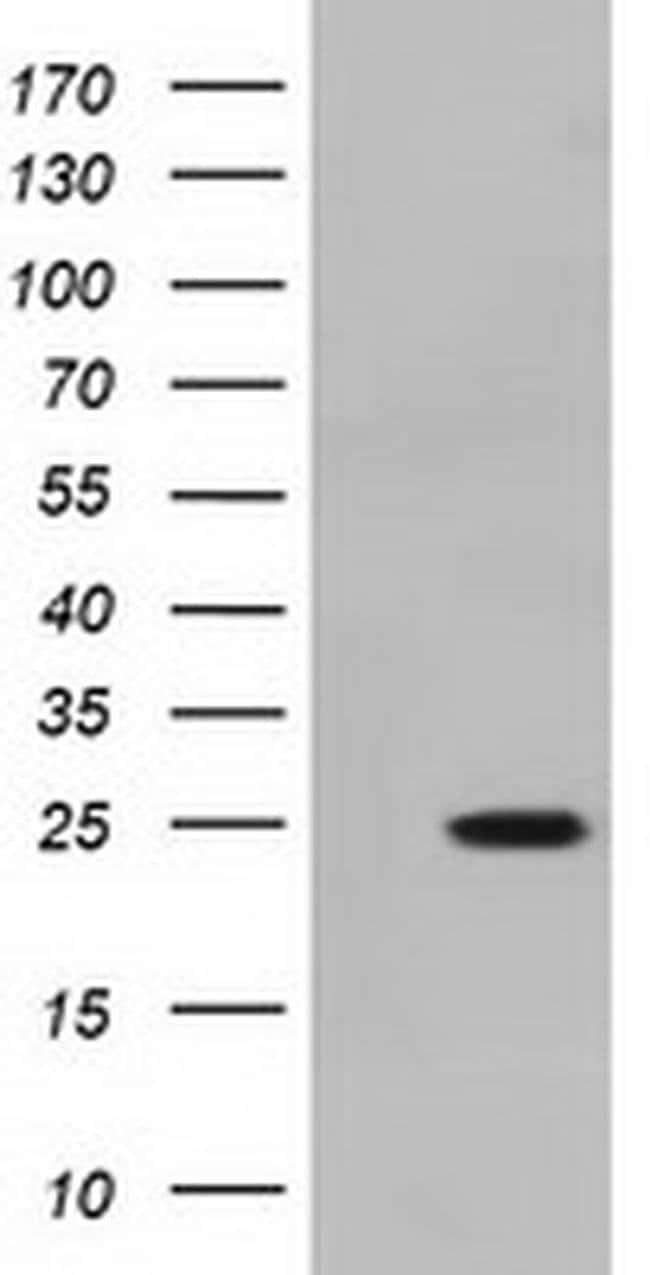 MOBKL2B Mouse anti-Human, Clone: OTI1F9, liquid, TrueMAB  100 µL;