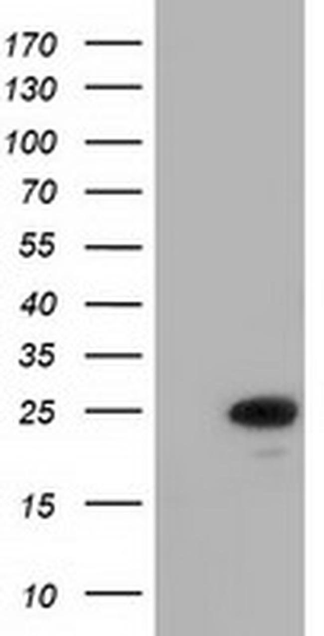 MOBKL2B Mouse anti-Human, Clone: OTI3E11, liquid, TrueMAB  100 µL;
