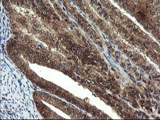 MPI Mouse anti-Human, Clone: OTI1C7, liquid, TrueMAB  100 µL; Unconjugated