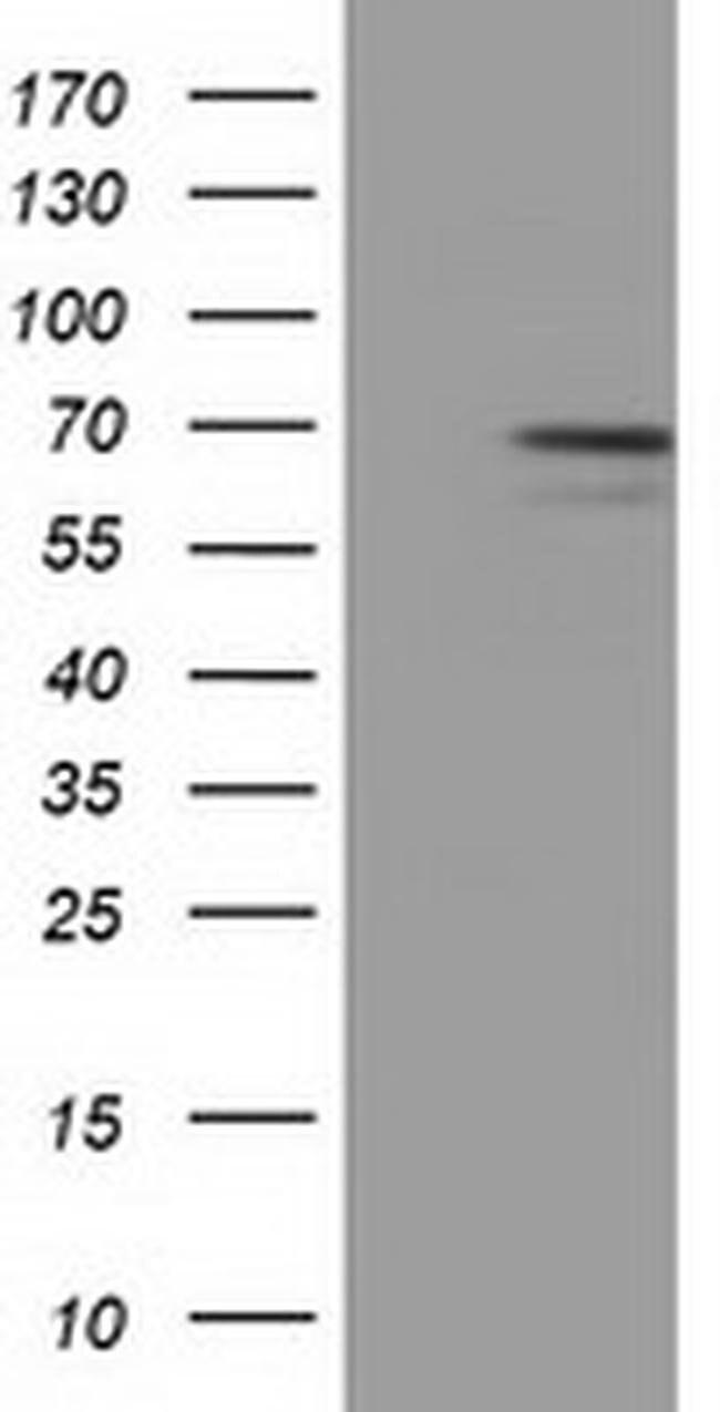 MPP3 Mouse anti-Human, Clone: OTI5C2, liquid, TrueMAB  100 µL; Unconjugated