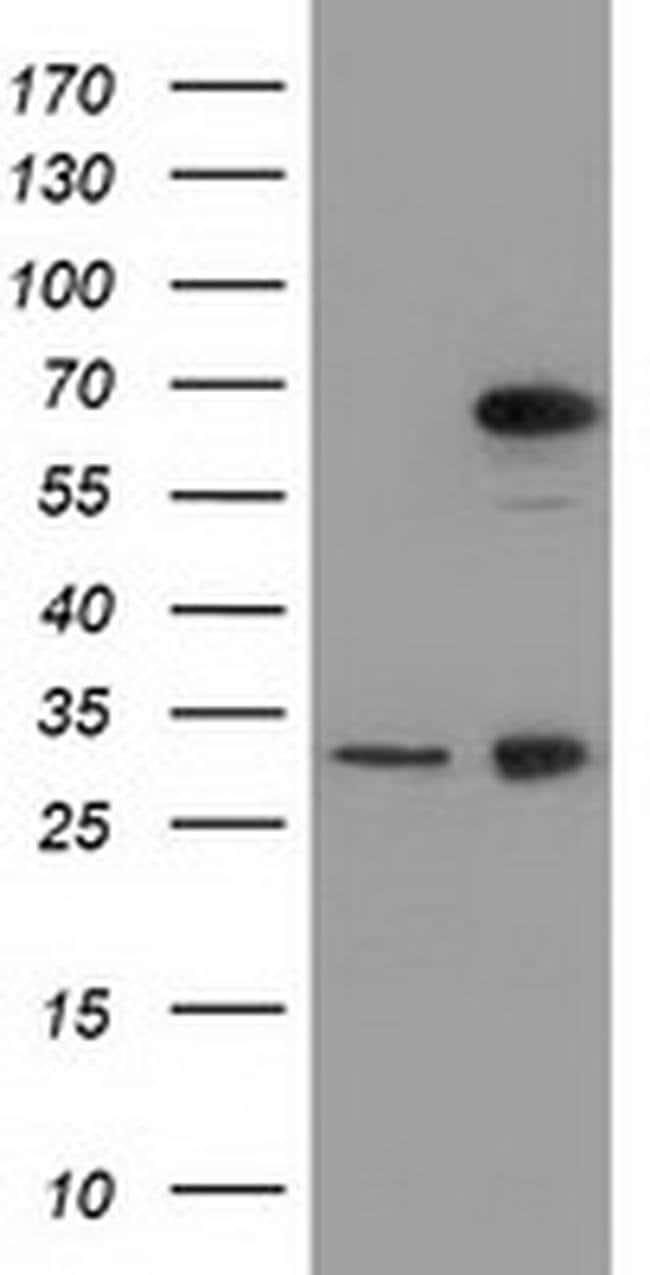 MPP3 Mouse anti-Human, Clone: OTI2A11, liquid, TrueMAB  100 µL; Unconjugated