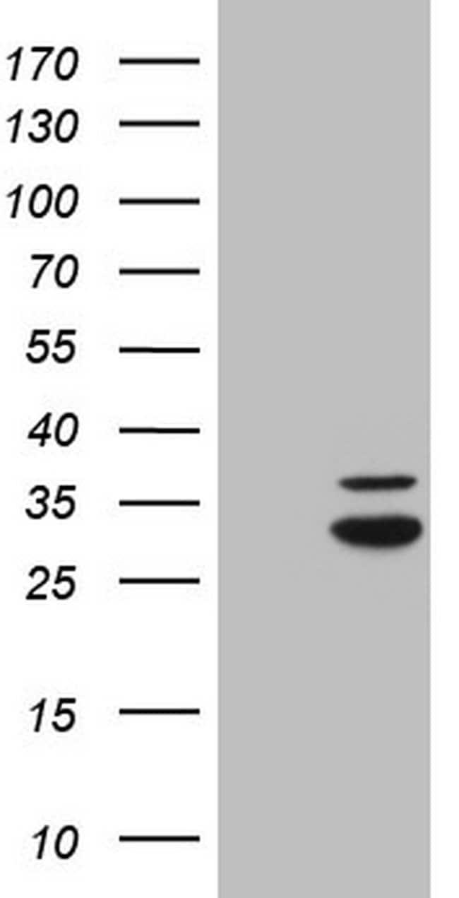 MRRF Mouse anti-Human, Clone: OTI1B8, lyophilized, TrueMAB  100 µg;