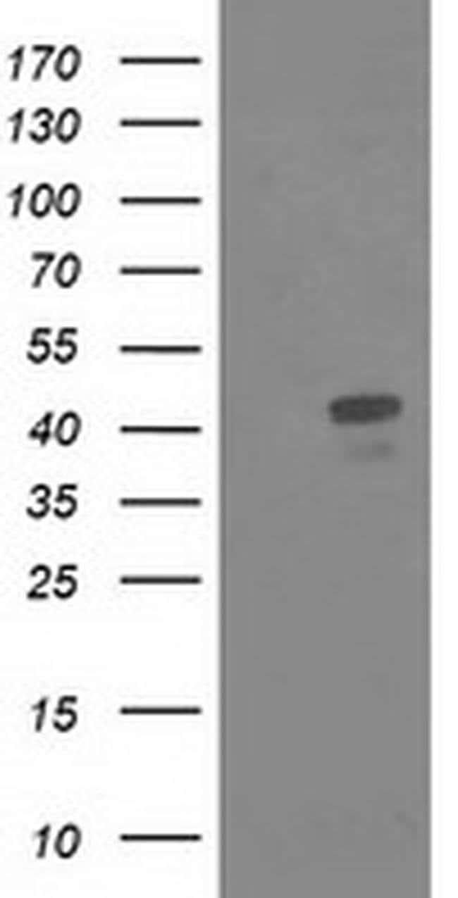 MSI1 Mouse anti-Human, Clone: OTI2H9, liquid, TrueMAB  100 µL; Unconjugated
