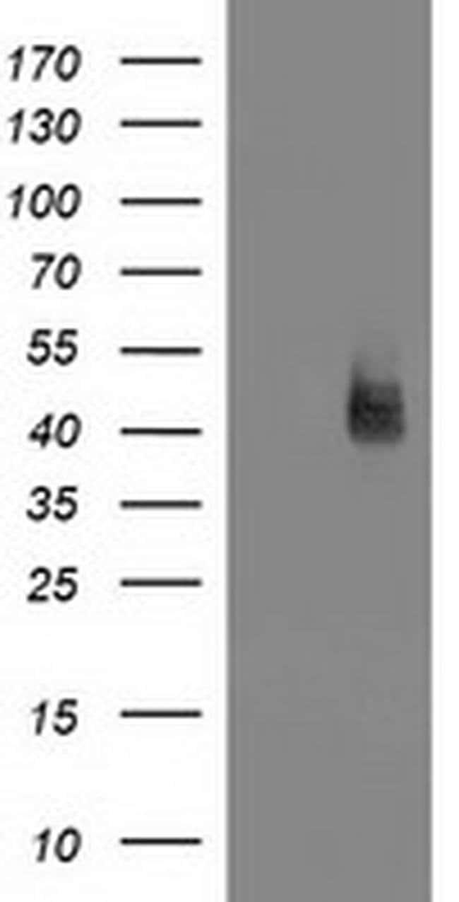 MSI1 Mouse anti-Human, Clone: OTI2E9, liquid, TrueMAB  100 µL; Unconjugated