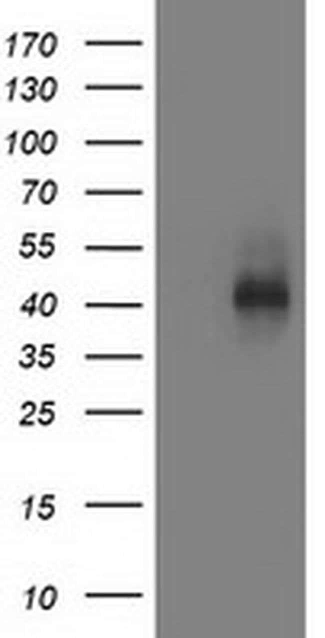 MSI1 Mouse anti-Human, Clone: OTI3F4, liquid, TrueMAB  100 µL; Unconjugated