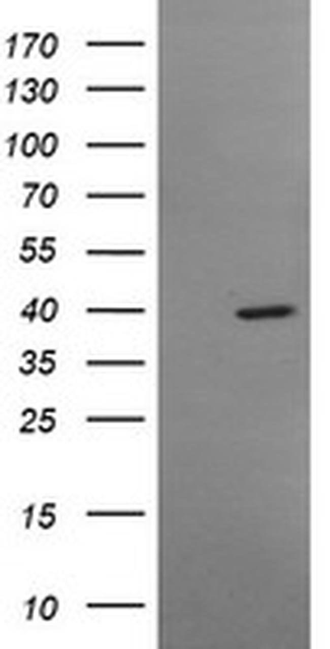 MSI1 Mouse anti-Human, Clone: OTI2B2, liquid, TrueMAB  100 µL; Unconjugated