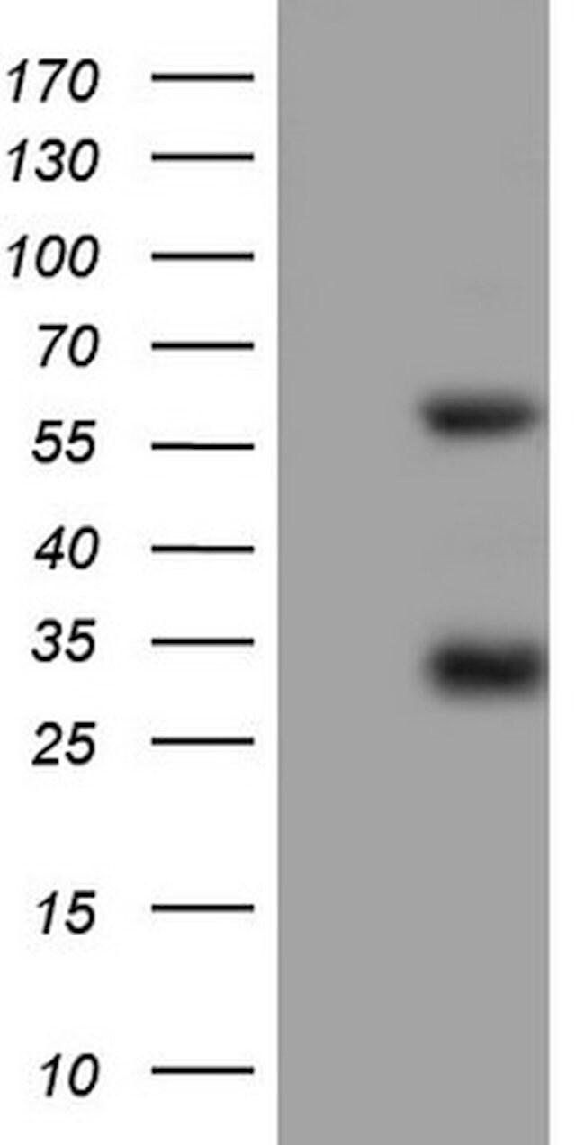 MSLN Mouse anti-Human, Clone: OTI5B12, lyophilized, TrueMAB  100 µg;