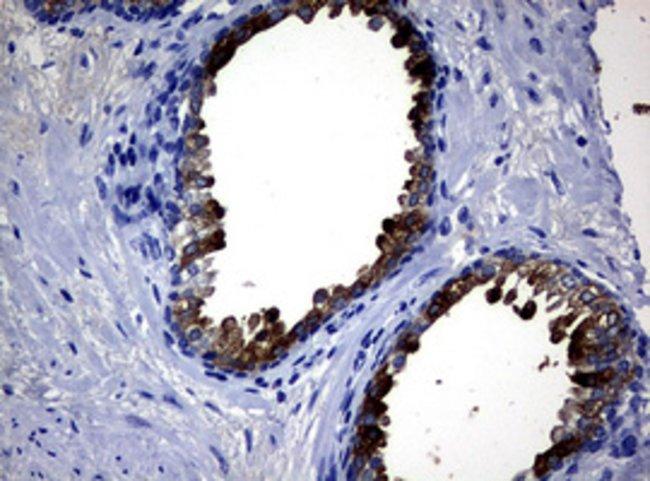 MSMB Mouse anti-Human, Clone: OTI5A8, lyophilized, TrueMAB  100 µg;