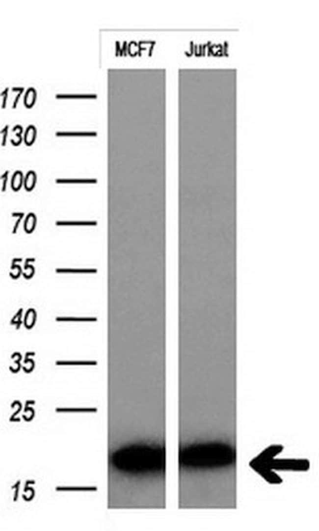 MSMB Mouse anti-Human, Clone: OTI2C11, lyophilized, TrueMAB  100 µg;