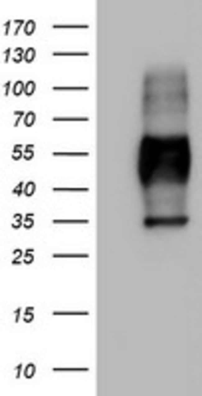 MSR1 Mouse anti-Human, Clone: OTI2B5, lyophilized, TrueMAB  100 µg;