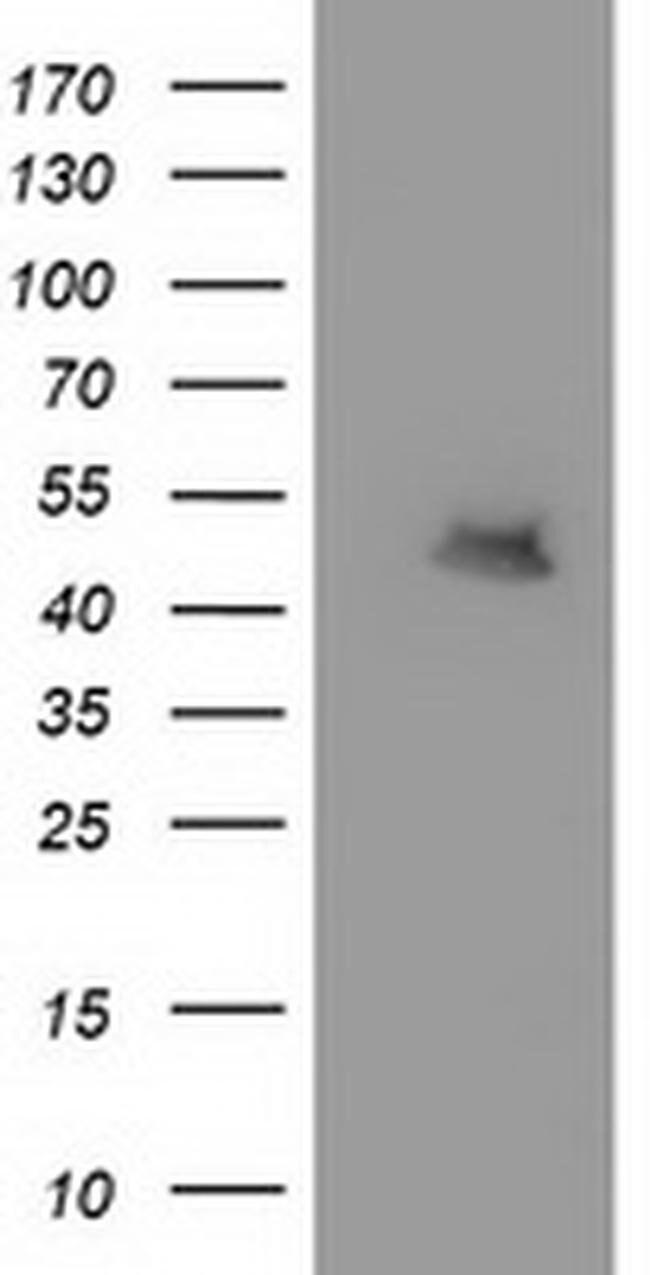 MTFMT Mouse anti-Human, Clone: OTI1H1, liquid, TrueMAB  100 µL; Unconjugated