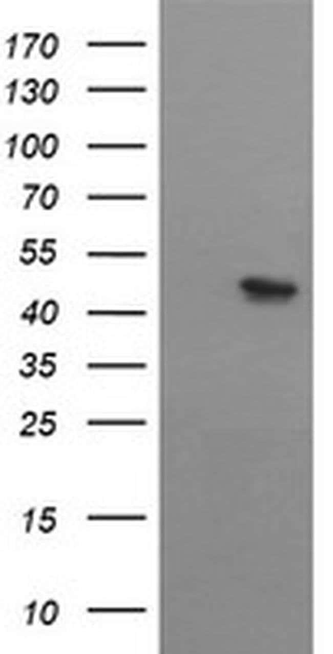 MTFMT Mouse anti-Human, Clone: OTI2A2, liquid, TrueMAB  100 µL; Unconjugated