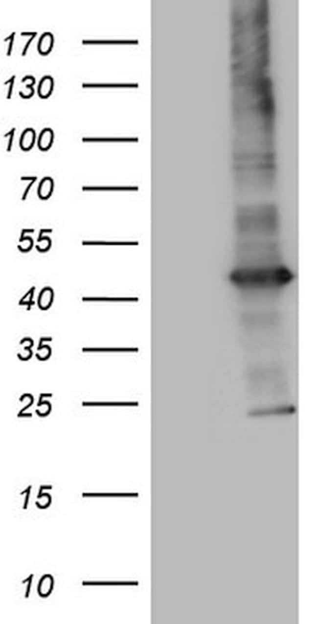 MTOR Mouse anti-Human, Clone: OTI1C3, lyophilized, TrueMAB  100 µg;
