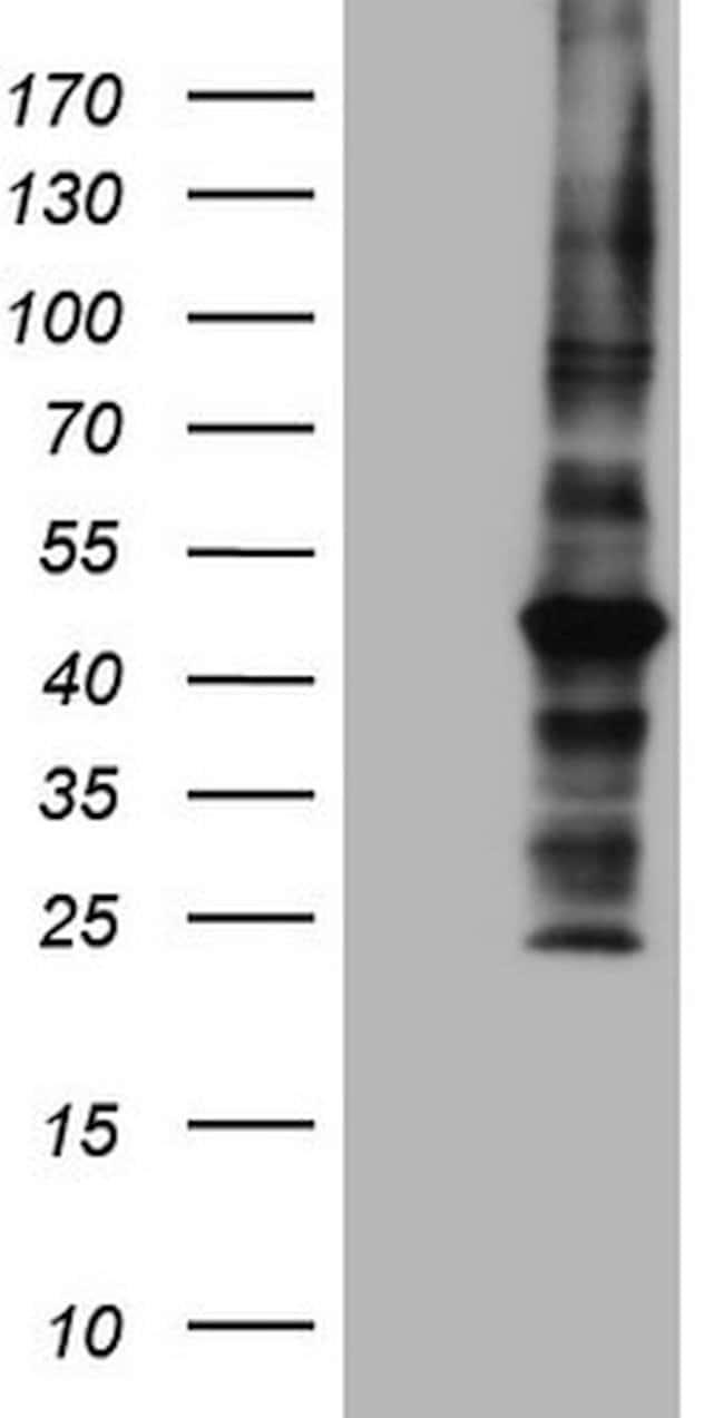 MTOR Mouse anti-Human, Clone: OTI5B1, lyophilized, TrueMAB  100 µg;