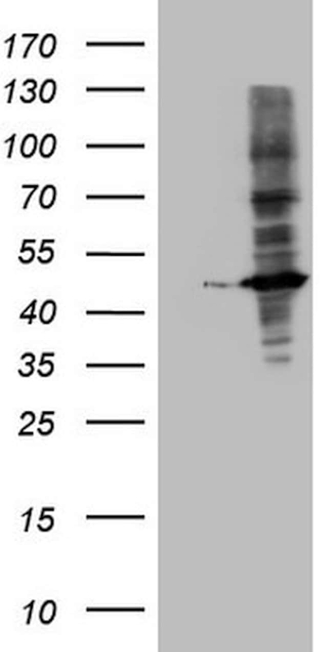 MTOR Mouse anti-Human, Clone: OTI10A2, lyophilized, TrueMAB  100 µg;