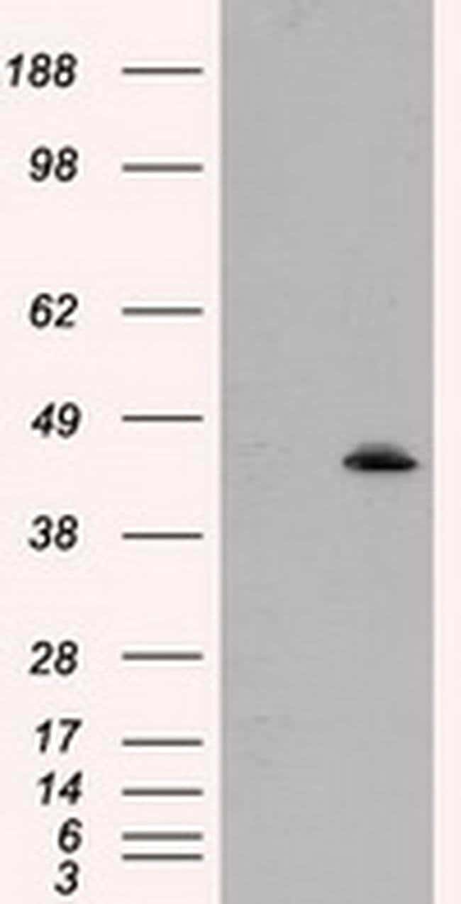 MTRF1L Mouse anti-Human, Clone: OTI1E3, liquid, TrueMAB  100 µL; Unconjugated