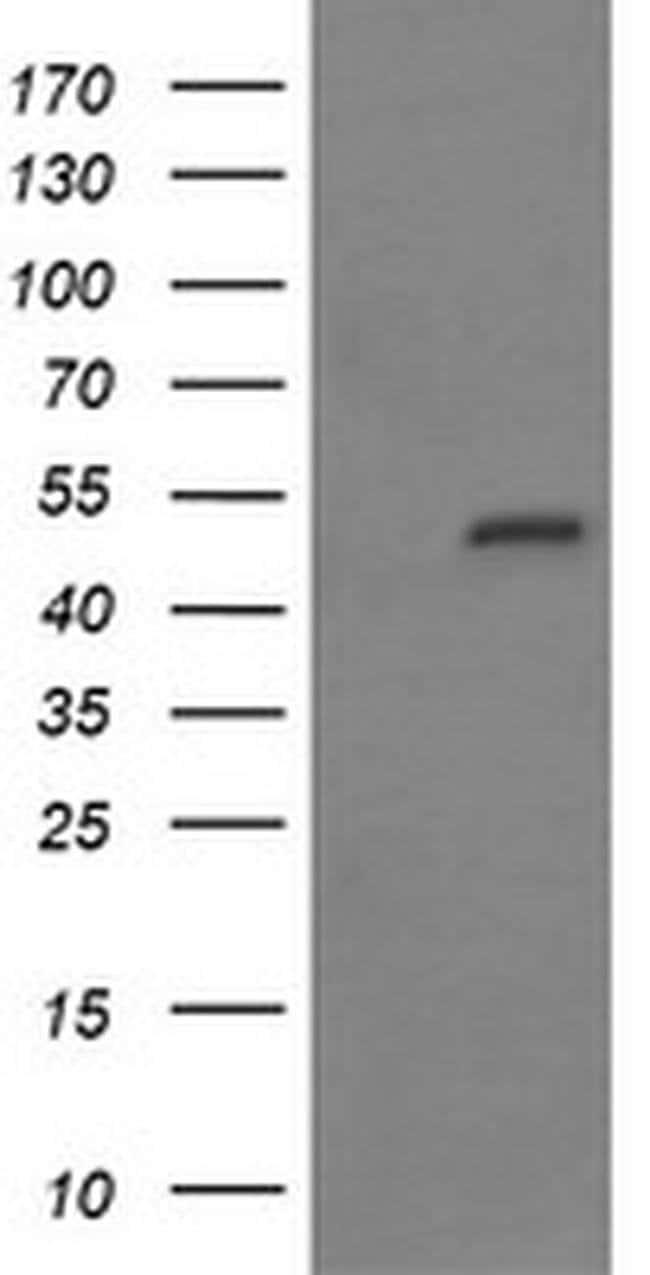 MYBPH Mouse anti-Human, Clone: OTI3G1, liquid, TrueMAB  30 µL; Unconjugated