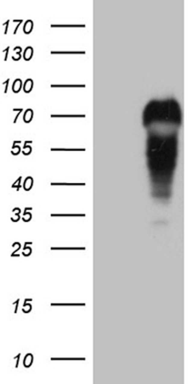 MYCN Mouse anti-Human, Clone: OTI2A2, lyophilized, TrueMAB  100 µg;